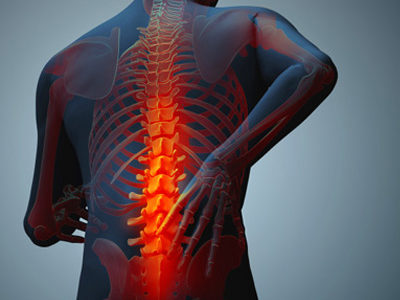 Ankylosing Spondylitis - Physio Direct NZ