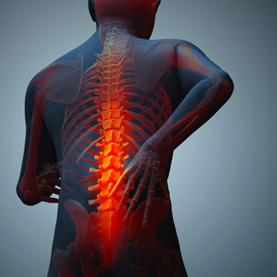 Things to Avoid When You Have Back Pain - Physio Direct NZ
