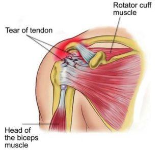 Rotator Cuff Tears - Physio Direct NZ