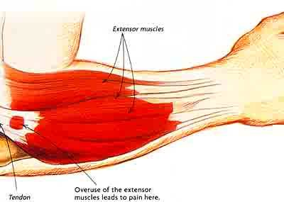 Tennis Elbow - Physio Direct NZ