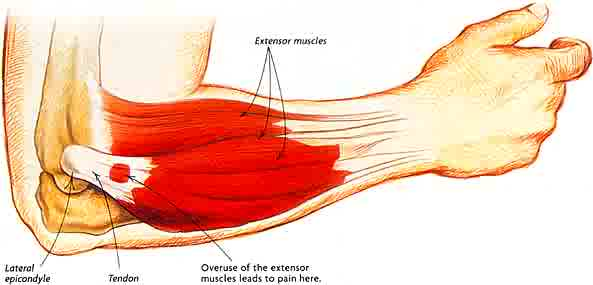 What is Tennis Elbow? - Rural Physio at Your Doorstep | Physio Direct