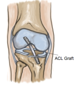 ACL Reconstructions - Physio Direct NZ