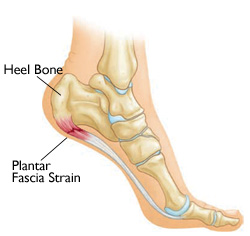 Plantar Fasciitis - Physio Direct NZ