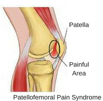 Runner's Knee (Patellofemoral Pain Syndrome) - Physio Direct NZ