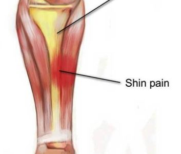Common Running Injuries - Physio Direct NZ