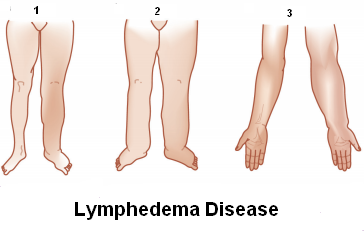 Focus on Lymphoedema - Physio Direct NZ