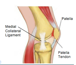 MCL Injuries (Medial Collateral Ligament) - Physio Direct NZ