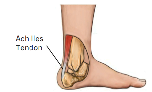 Achilles Tendon Tears - Physio Direct NZ