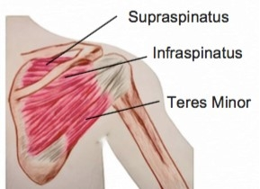 Rotator Cuff Tears - Physio Direct NZ