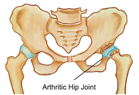 Osteoarthritis of the Hip - Physio Direct NZ
