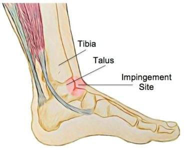Anterior Ankle Impingement - Physio Direct NZ