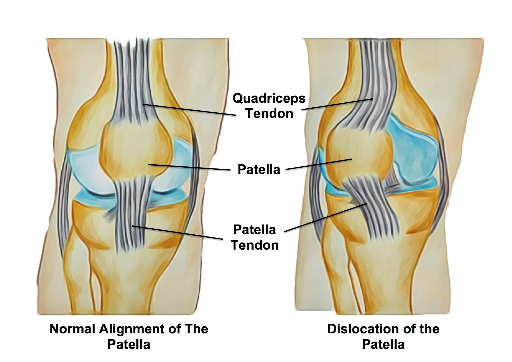 Patella Dislocations Rural Physio At Your Doorstep
