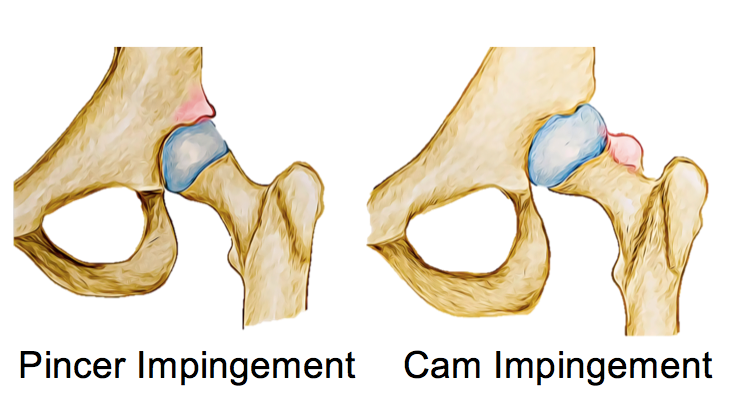 Femoroacetabular Impingement (FAI) - Physio Direct NZ