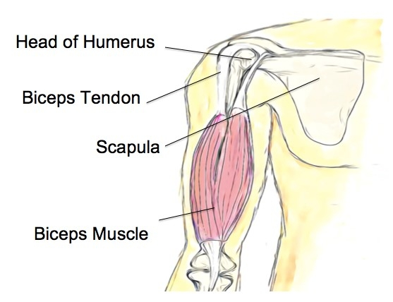 Biceps Tendinopathy - Physio Direct NZ
