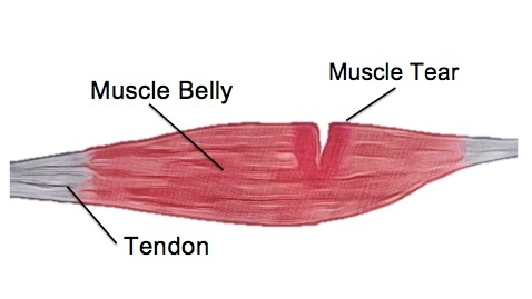 The Four Biggest Mistakes You Can Make After A Muscle Tear - Physio Direct NZ