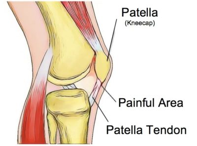 Patellar Tendinopathy - Physio Direct NZ
