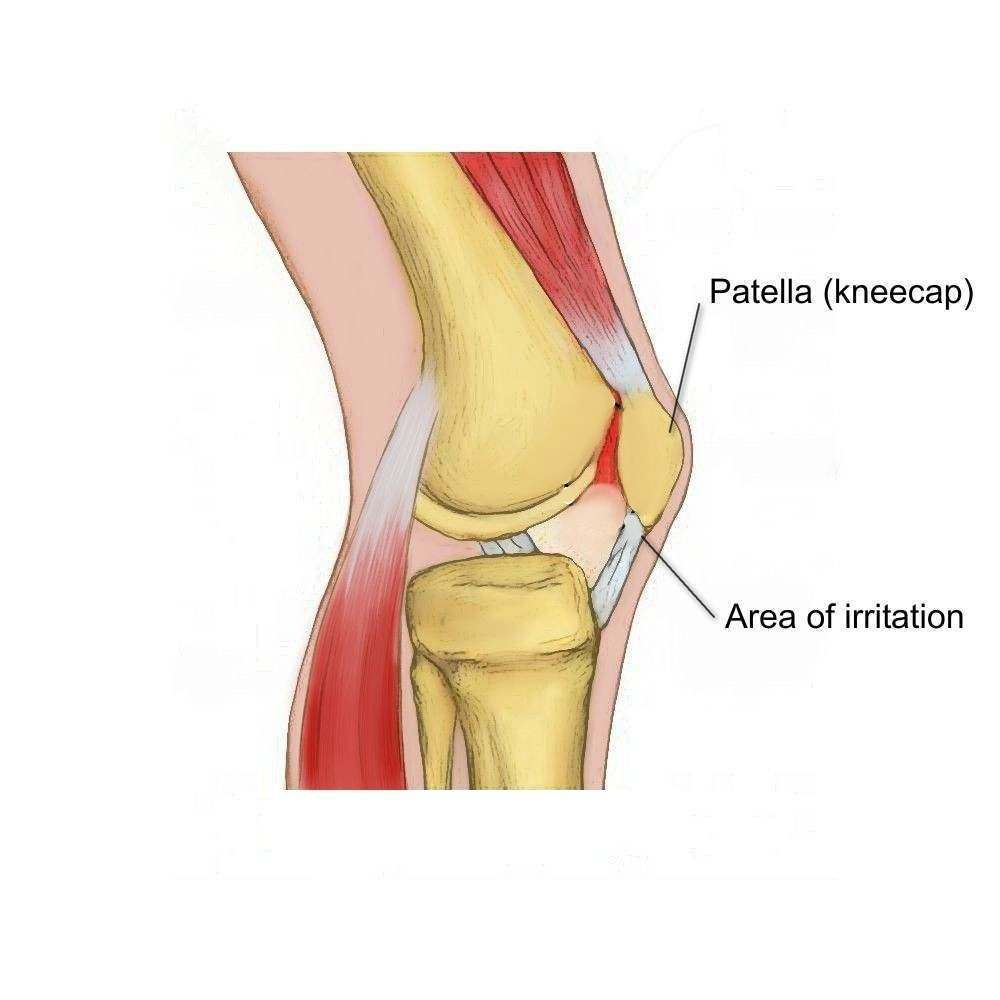 Runner's Knee                       (PFJ Syndrome) - Physio Direct NZ