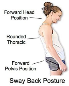 Some Surprising Facts About Posture - Physio Direct NZ