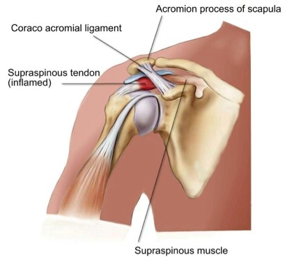 Shoulder Impingement - Physio Direct NZ