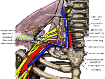 Thoracic Outlet Syndrome - Physio Direct NZ