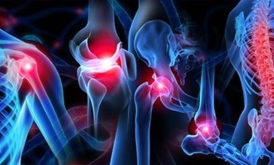 Orthopaedic Surgery And Physiotherapy - Physio Direct NZ