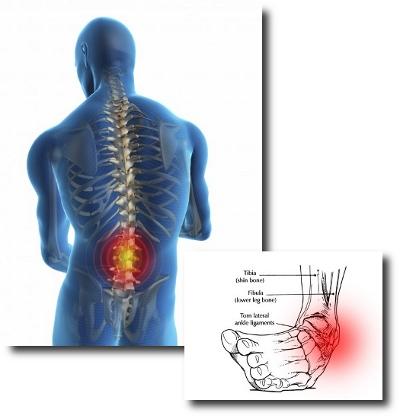 Sprains vs Strains - Physio Direct NZ