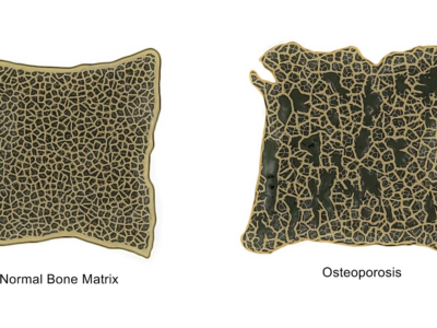 Facts About Osteoporosis - Physio Direct NZ