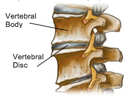 Lumbar Disc Degeneration - Physio Direct NZ