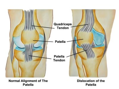 Patella Dislocations - Physio Direct NZ