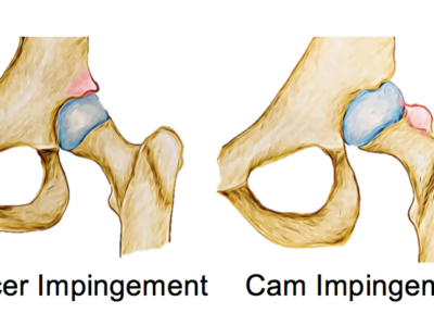 Femoroacetabular Impingement (FAI) - Physio Direct NZ