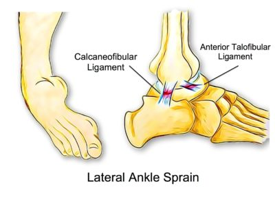 Ankle Sprains - Physio Direct NZ