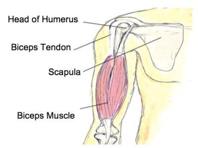 Biceps Tendinopathy - Physio Direct NZ