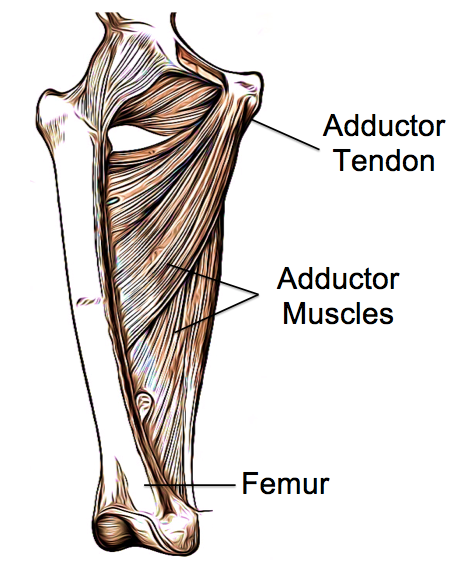 Adductor Tendinopathy - Physio Direct NZ