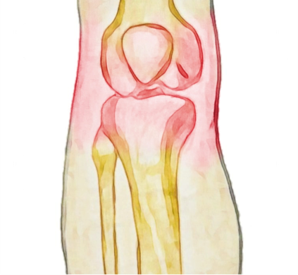 Osteoarthritis of the Knee - Physio Direct NZ