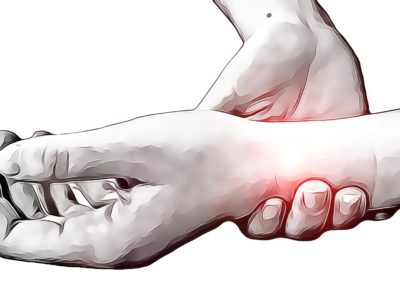 Wrist Sprains - Physio Direct NZ