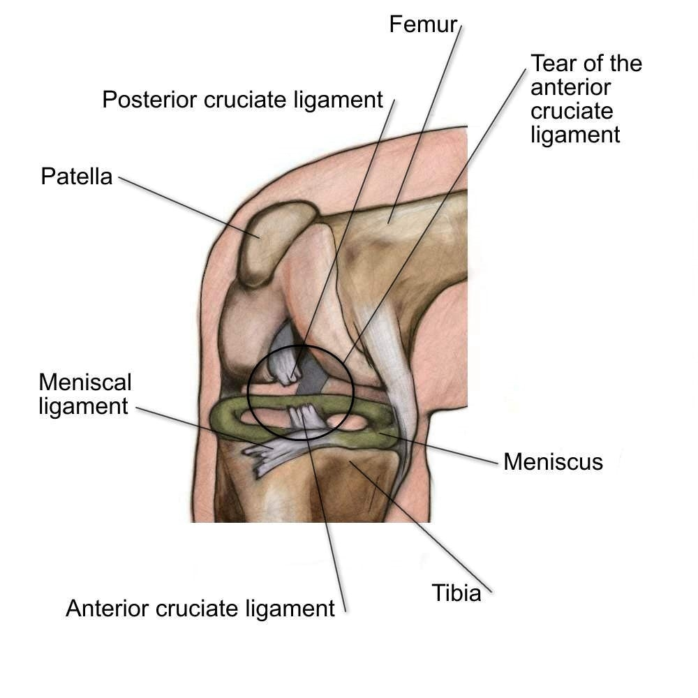ACL Tears - Physio Direct NZ