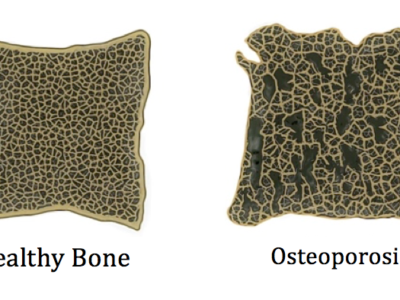 Focus On Osteoporosis - Physio Direct NZ