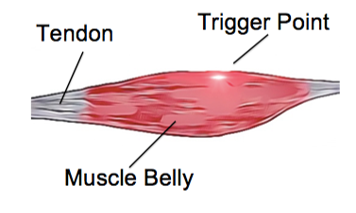 Muscular Trigger Points - Physio Direct NZ