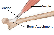 Tips for Managing Tendon Injuries - Physio Direct NZ