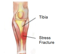 Stress Fractures - Physio Direct NZ