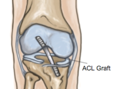 Focus on ACL Reconstructions - Physio Direct NZ