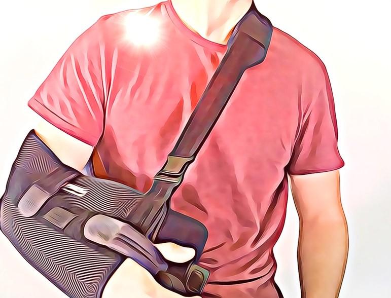 Focus: The Broken Collarbone - Physio Direct NZ