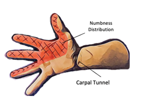 Focus on Carpal Tunnel Syndrome - Physio Direct NZ