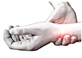 A Wrist Injury: Scaphoid Fractures - Physio Direct NZ
