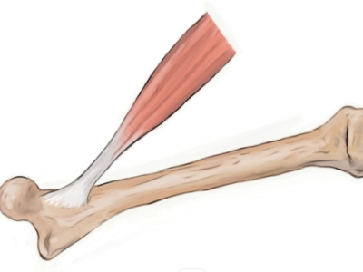 Why Do Tendon Injuries Take So Long To Heal? - Physio Direct NZ