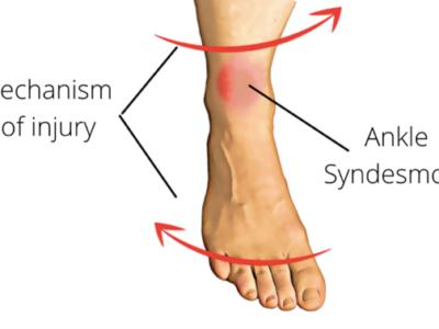 Focus On High Ankle Sprains - Physio Direct NZ